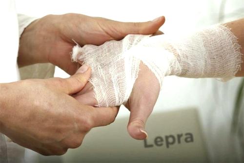 Positiva lucha contra la lepra en el Cauca