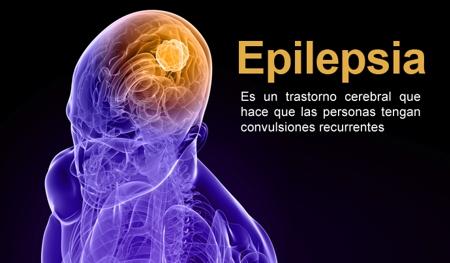 Sacar a la epilepsia de la sombra
