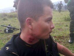 Herido otro policía en enfrentamientos con indígenas