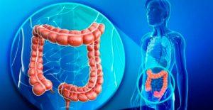 Cáncer de colon La importancia de la prevención