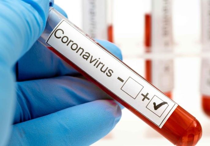 Hoy: 9.486 casos nuevos de contagio y 311 muertes