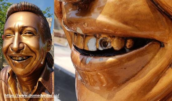 Le arrancaron un diente a Diomedes Díaz