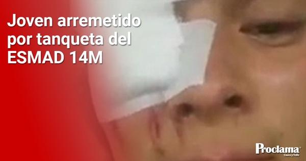 """""""Con el ojo que veo, sigo viendo un mejor país"""": Ortega"""